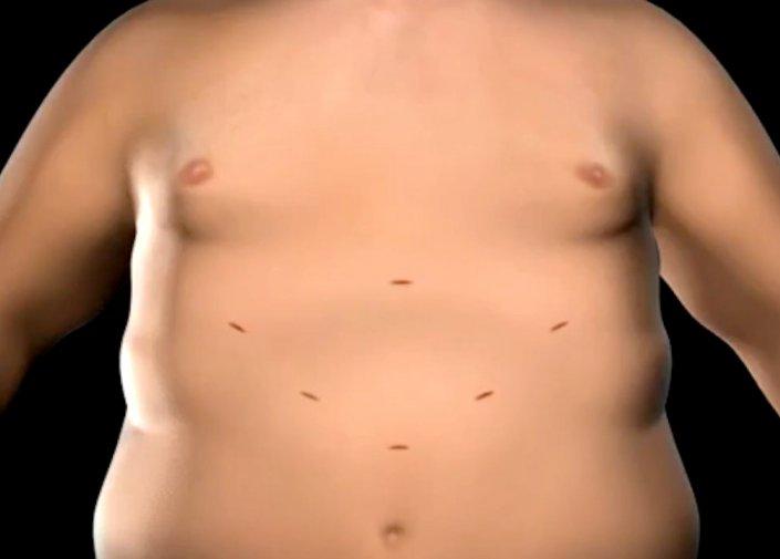 perte de poids attendue sur le régime sanguin